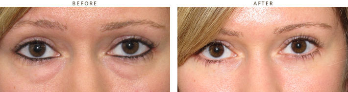 Eyelid lift surgery (blepharoplasty) - Before and After Pictures