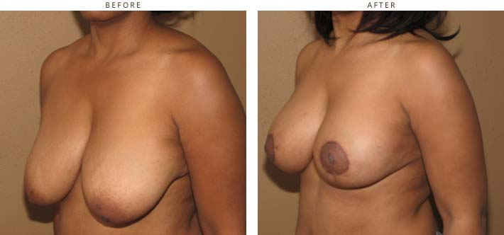 Breast Lift (Mastopexy) – Before and After Pictures