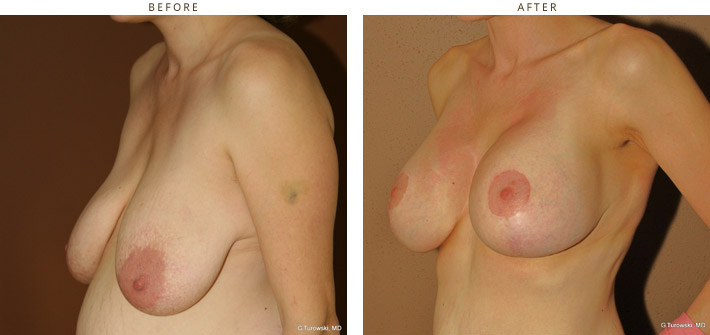Here casual, before and after pictures breast idea join