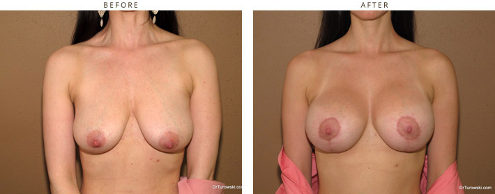 Breast Lift (Mastopexy) with implants - Before and After Pictures