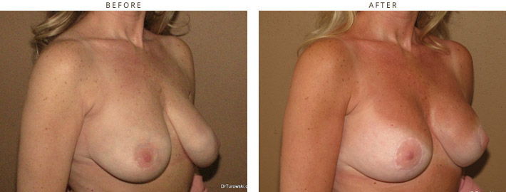 Mastopexy - before and after pictures
