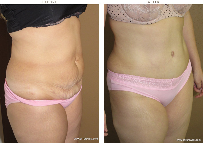 Abdominoplasty - Before and After Pictures