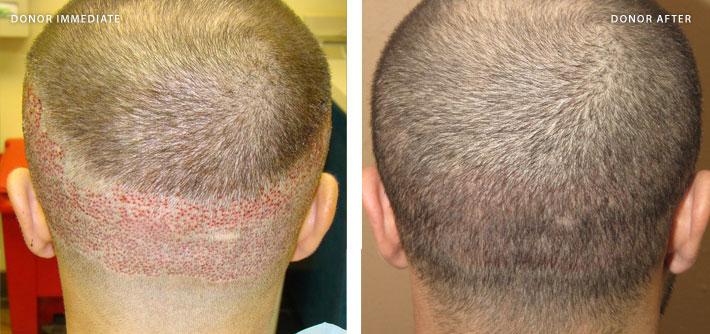ARTAS - hair transplantation - 2500 fu transplant