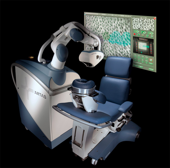 ARTAS - Robotic Hair Transplant Chicago