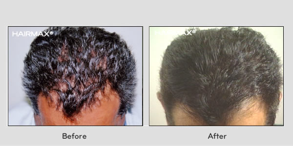 Hair Loss LaserComb Before & After Photos - Males
