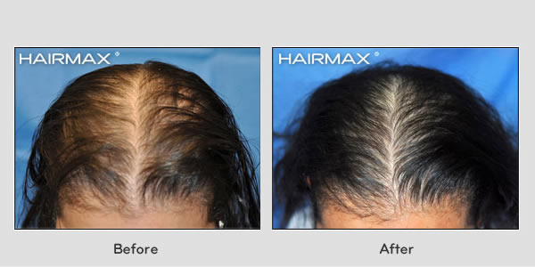 Hair Loss LaserComb Before & After Photos - Female Results