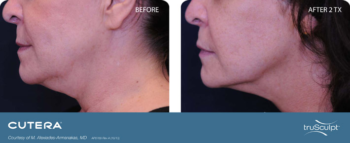 truSculpt-Submentum-before-and-after-pictures