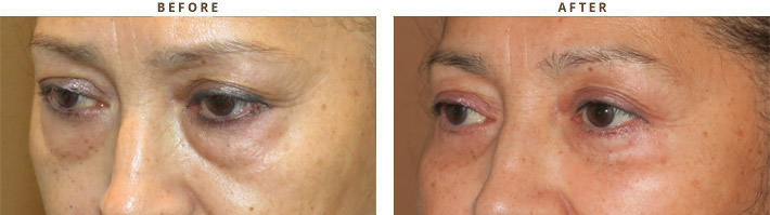Eyelid Lift Surgery Blepharoplasty Before And After