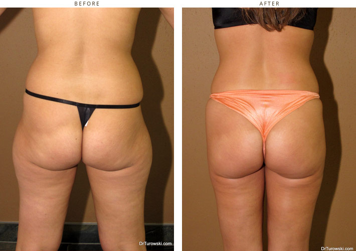 Brazilian buttock lift before and after pictures