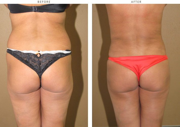 Brazilian Buttock Lift – Before and After Pictures
