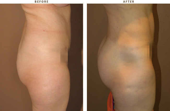 Dr Turowski Brazilian Buttock Lift Chicago