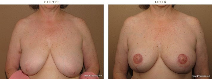 bilateral breast reconstruction after mastectomy with latissimus flaps and implants