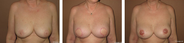 Breast Reconstruction – Before and After Pictures