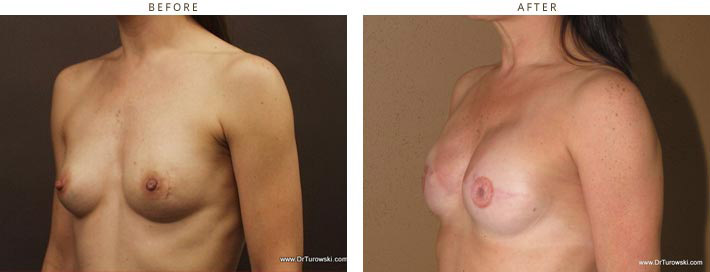 Breast Reconstruction - before and after pictures