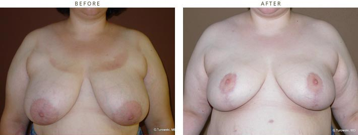 Breast Reduction – Before and After Pictures