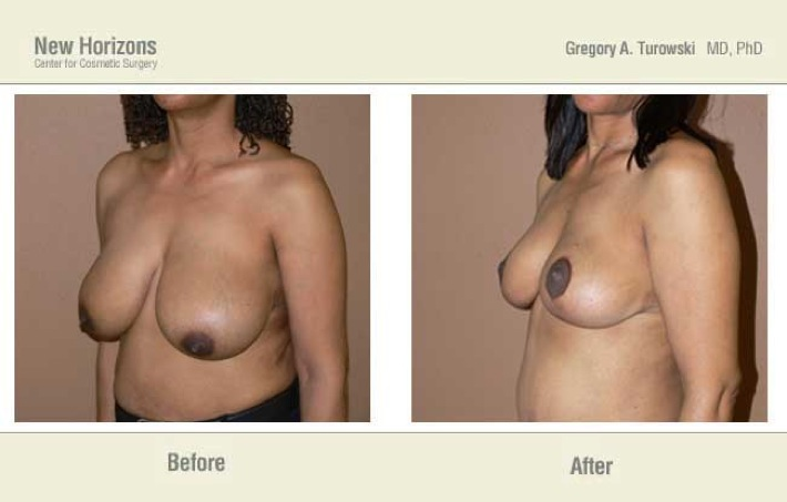 Breast Reduction - Before and After Pictures