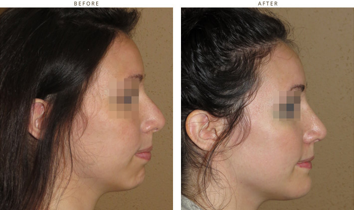 chin augmentation through the intraoral approach (no visible scar) and rhinoplasty