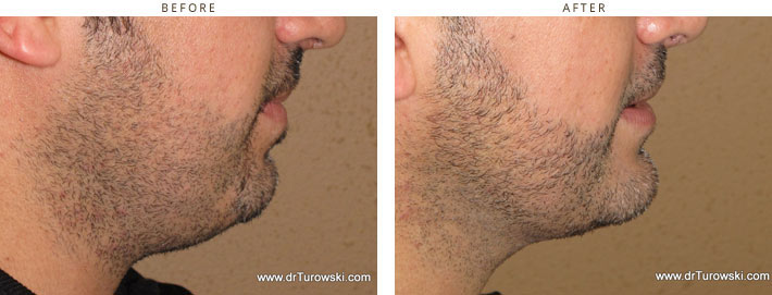 Chin Augment - before and after