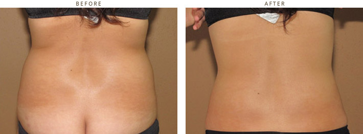 Cool Lipo - Laser liposuction Chicago