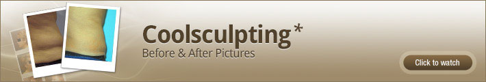 coolsculpting-before-and-after-pictures