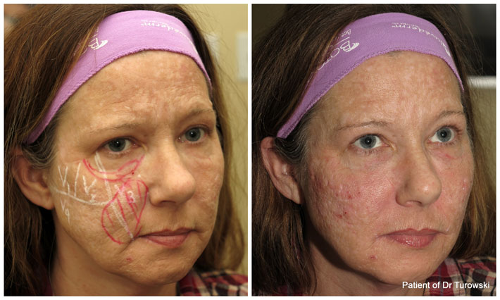 Immediate results of cheek augmentation and lift with Voluma - newly FDA approved filler - works great and for 2 years!