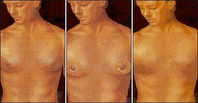 Gynecomastia Chicago