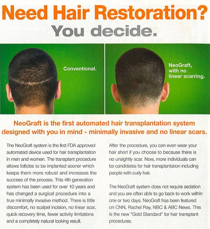 Hair Restoration Chicago