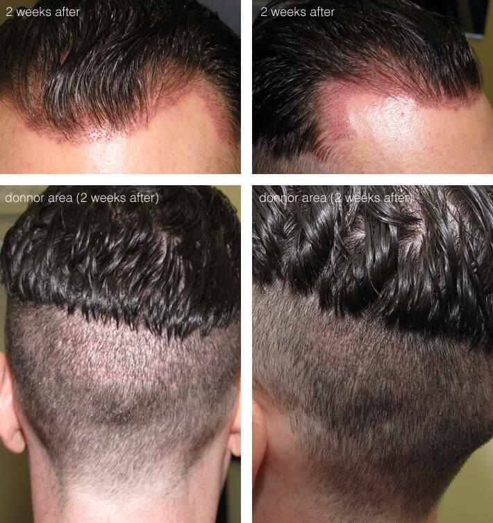 Hair transplant - 2 weeks after