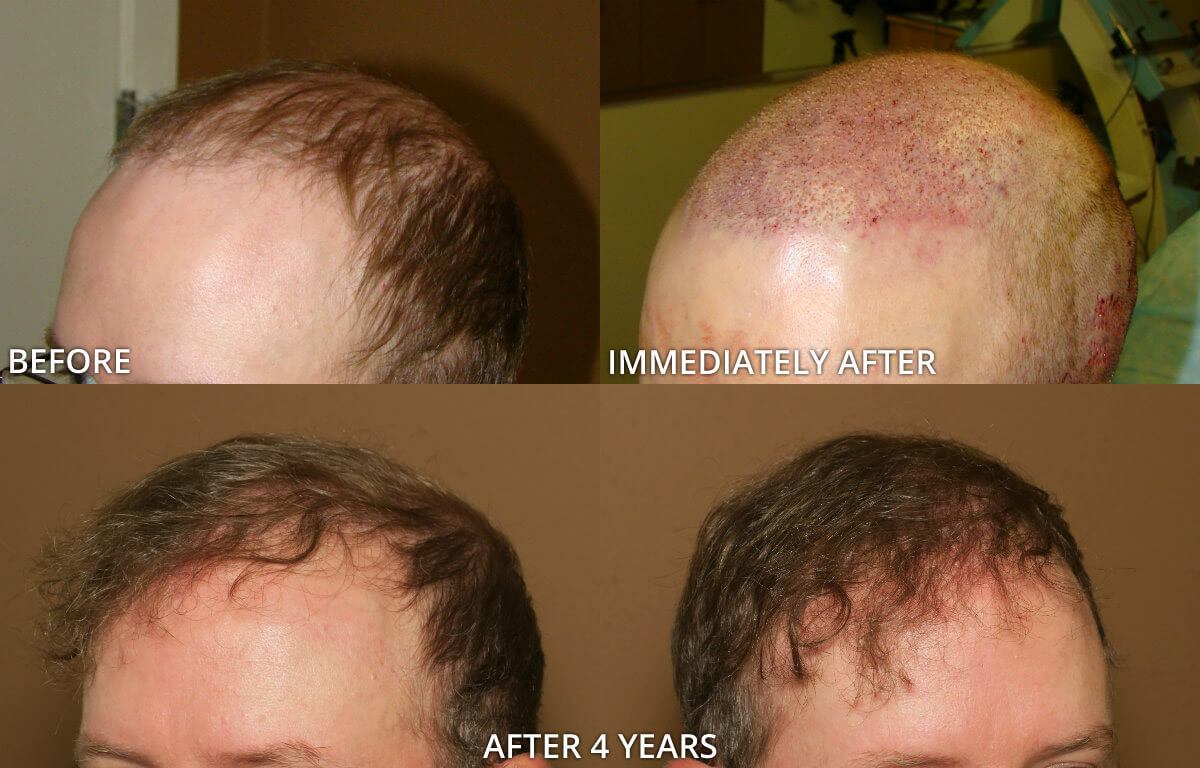 fue hair transplantation � before and after pictures