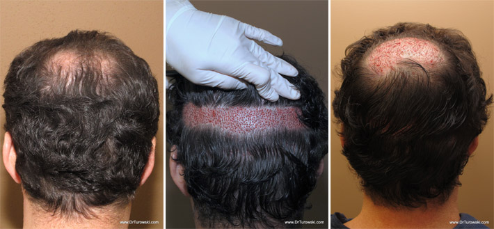 Hair restoration chicago - Boot country coupon