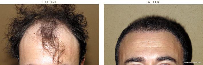 Hair Transplantation Chicago