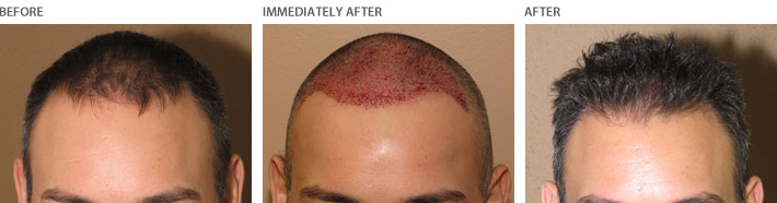 Hair Transplantation – Before and After Pictures