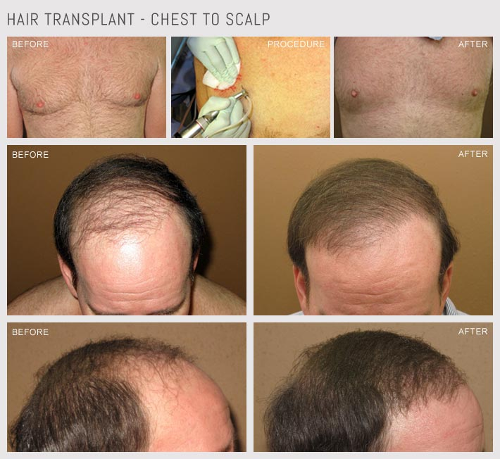 Hair Transplantation - Chest to Scalp