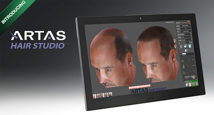 Hair transplantation chicago - visualization