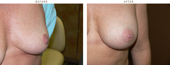 Inverted Nipple - Before and After Pictures