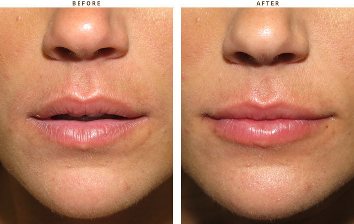 Lip lift - Before and After Pictures