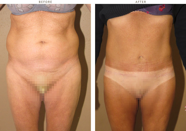 Belt Lipectomy - Before and After Pictures