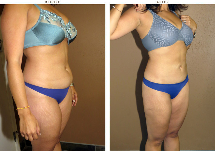 Liposuction – Before & After Pictures