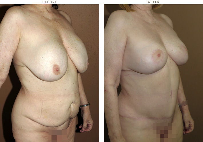 Mastopexy tummu tuck before and after pictures
