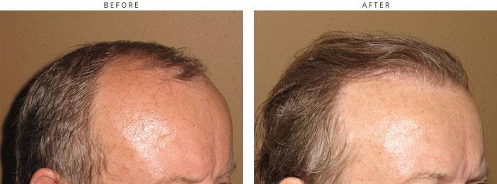 Neograft - hair transplantation - 2000 FUE