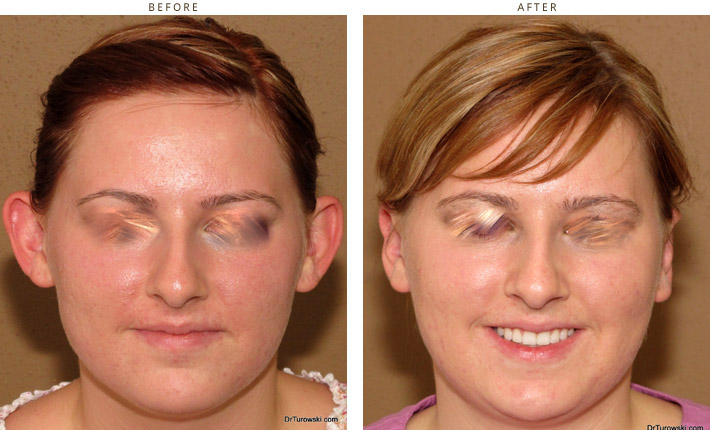 Otoplasty - before and after pictures