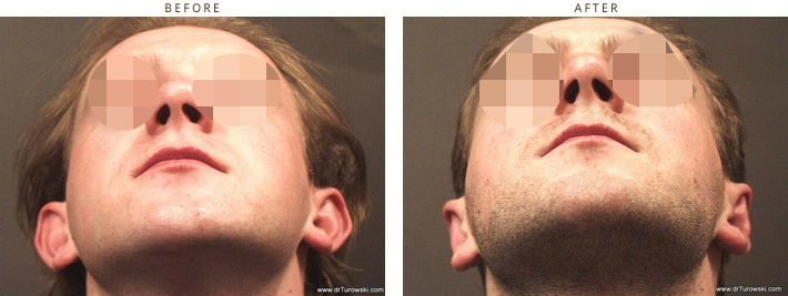 Ear setback ( Otoplasty ) Chicago