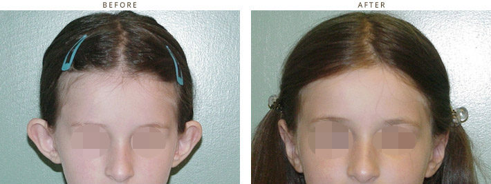 Otoplasty (Ear Setback) - Before & After Pictures