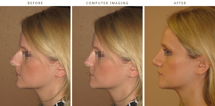 Plastic Surgery Computer Imaging