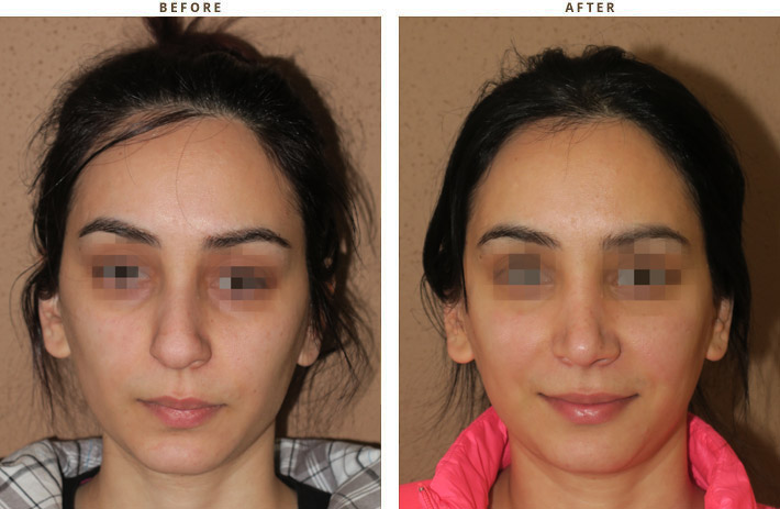 Dr Turowski Rhinoplasty Chicago