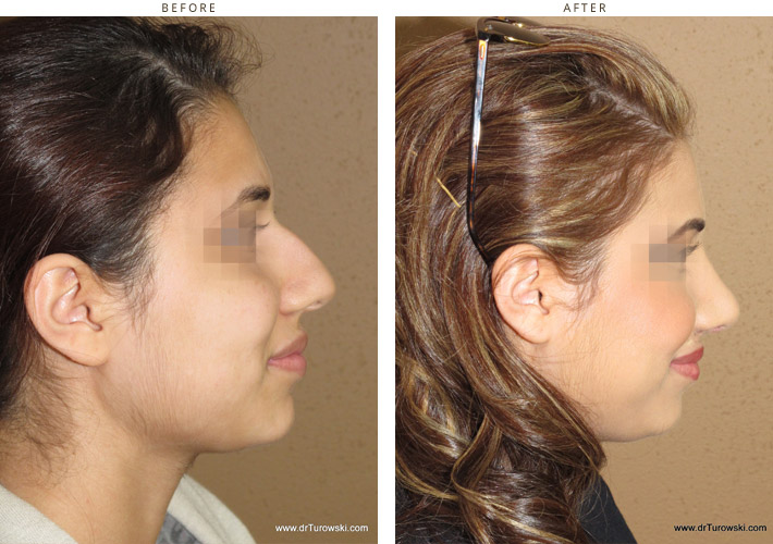 rhinoplasty-before-and-after-pictures-37