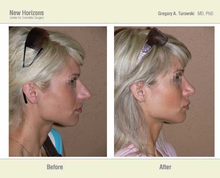 Rhinoplasty – Before and After Pictures