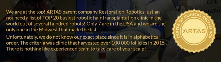 robotic-hair-transplant-artas-best-clinic