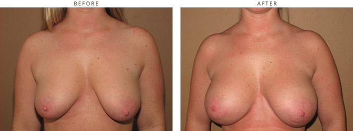 Scarless Internal Breast Lifting - Before and After Pictures