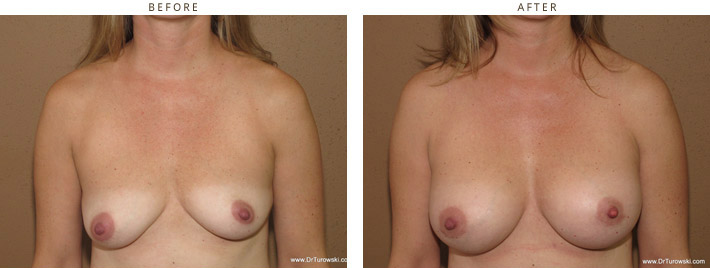 Breast Asymmetry - before and after pictures